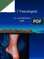 GOTA Y Pseudogota