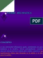 Fiebre Reumatica III