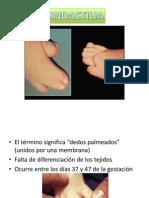 Sindactilia y Polidactilia
