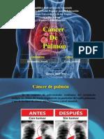Presentación  CANCER DE PULMON