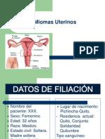 miomas_uterinos_ok[1]