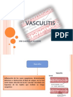 VASCULITIS. modificado