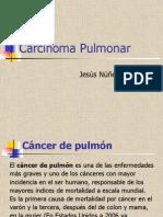 Carcinoma de Pulmon