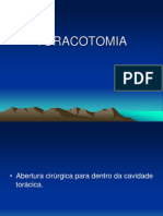 TORACOTOMIA