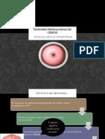 Lesiones premalignas de cérvix