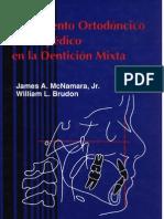 Tratamiento Ortodontico Denticion Mixta Mcnamara