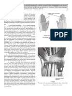 Journal of Bodywork & Movement Therapies - Carpal Tunnel Syndrome