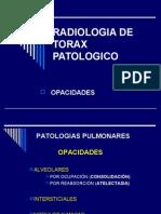 Tórax patológico (opacidades)