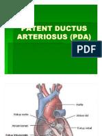 Ka 1 Slide Patent Ductus Arteriosus