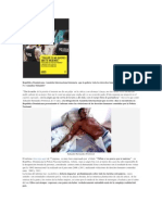 Amnistia International Denuncia Abusos Policiales en Republica a