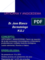 Urticaria.ppt 13