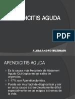 apendicitis-aguda