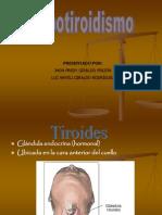 Hipotiroidismo Exp
