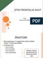 Sinusitis Frontalis Akut