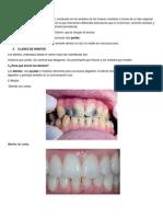 Qué son los dientes