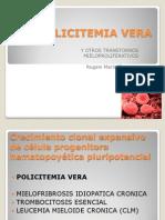 Policitemia Vera
