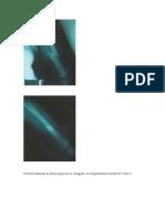 Fractura diafisiaria