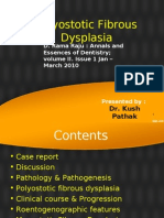 Fibrous Dysplasia - Polyostotic