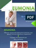 neumonia Puga