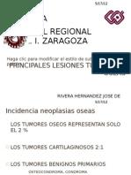 Principales Lesiones Tumorales Oseas