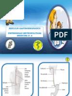 reflujo1-110426231600-phpapp01
