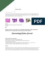 Fibroepithelioma of Pinkus With Pleomorphic Epithelial Giant Cells