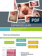 Carcinoma Espinocelular (2)