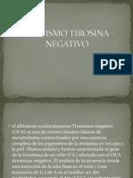 ALBINISMO TIROSINA - NEGATIVO