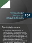 Técnicas de anestesia convesionales