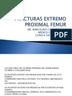 Fracturas Extremo Proximal Femur