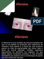 albinismo-2-