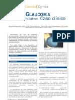 Glaucoma Seudoexfoliativo
