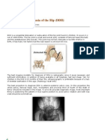 Developmental Dysplasia of the Hip - Dubai Health Authority - DHA