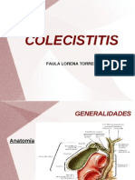 colecisititis