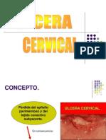 Ulcera Cervical