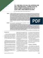 Aspergilose Invasiva - Tomografia de Alta Resolucao