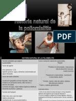 historia natula poliomelitis