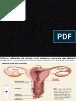 Cancer Del Utero 2biolo