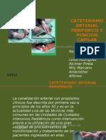 Cateterismo Arterial
