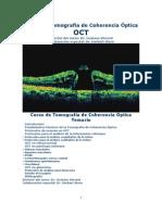 Tomografia de Coherencia Optica OTC