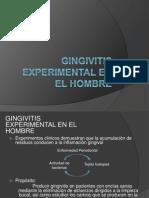 Gingivitis Experimental en El Hombre