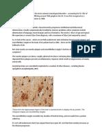 Alzheimers Presentation