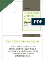 Dilatacion Ventricular (2)