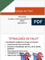 Tetralogía de Falot