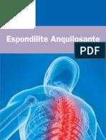 Espondilite_Anquilosante_SBR