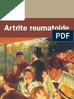 Artrite_Reumatoide_SBR