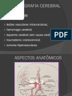 Angiografia Cerebral - Radioimagem Em Anatomia i