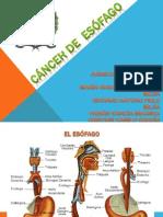 Cancer de Esofago