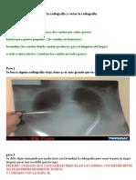 Como Lavar La Radiografia y Cortar La Radiografia