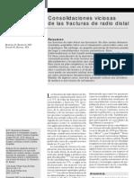 Fractura Radio